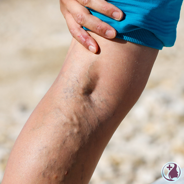 Over 25% of all women suffer from unattractive spider veins. Discover what dermatologists recommend to get rid of spider veins and achieve more beautiful, youthful and radiant skin.